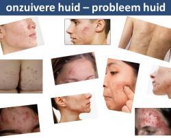 phitex clearup voorbeelden testimonials reviews acne rosacea