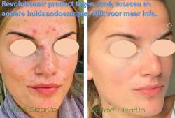 phitex clear up acne rosacea onzuiverheden