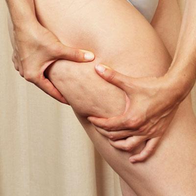 behandeling cellulite