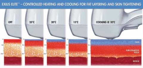 layering voor vetverbranding en figuurcorrectie