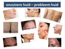 phitex acne onzuivere huid
