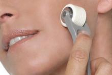 needling roll cit dermapen