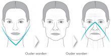 huid menopauze