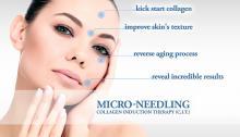 micro needling collageen inductie therapie