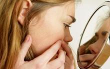 pukkels puistjes acne