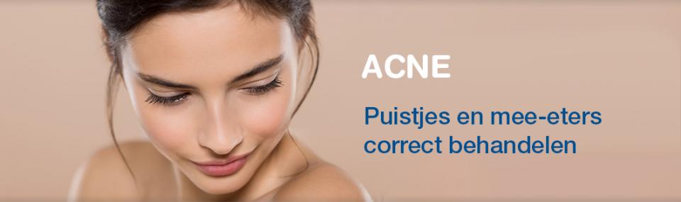 acne puistjes behandelen