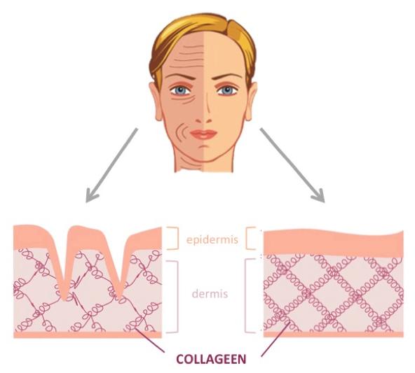collageen huid stevigheid rimpels leeftijd