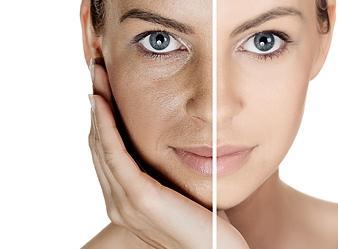 tips huidverzorging